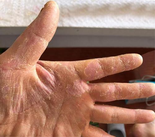 福州华研皮肤医院医生提醒:秋冬季手部干裂起皮注意三种情况