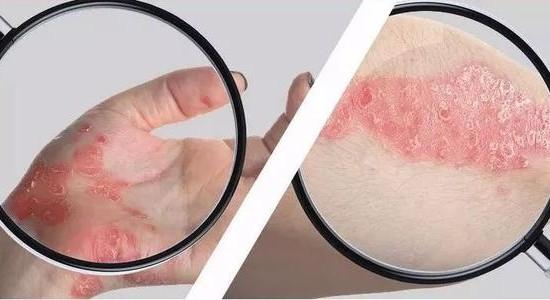 福州皮肤医院:秋季皮肤瘙痒是湿疹还是皮炎皮肤病