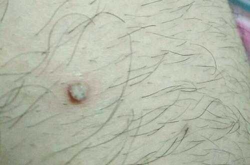 扁平疣怎么去除?常见的扁平疣治疗方法