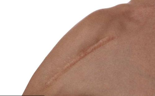 [福州皮肤科]哪些食物有助于疤痕的修复