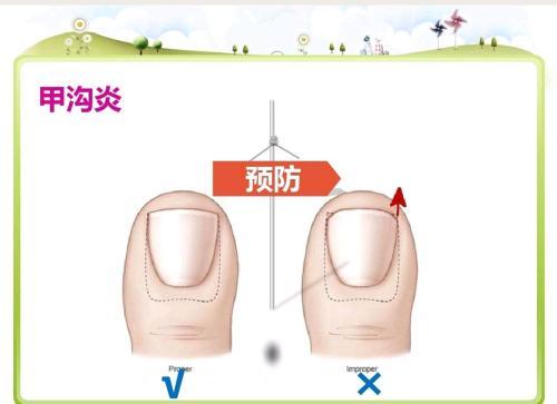 [甲沟炎防护]甲沟炎的护理和预防注意事项